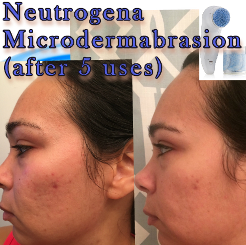 Neutrogena Microdermabrasion How to Use & Review